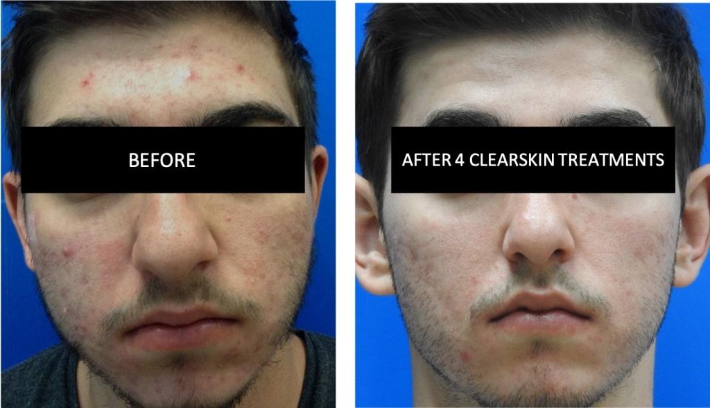ClearSkin1-1024x589