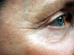 Dermapen-Lines-Eyes-Before