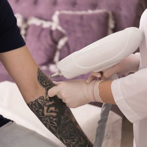 Laser Tattoo Removal London