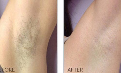 laser-hair-removal-bella-vi-med-spa-e1554678640952-500x300