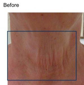 skin-tightening-before